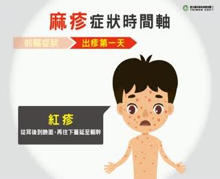 麻疹症狀時間軸
